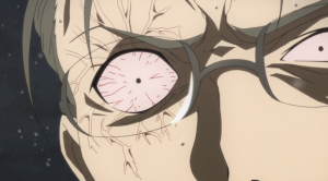 Sword Art Online Damaged Eye